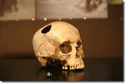 01.trepanation (pre-historic time)